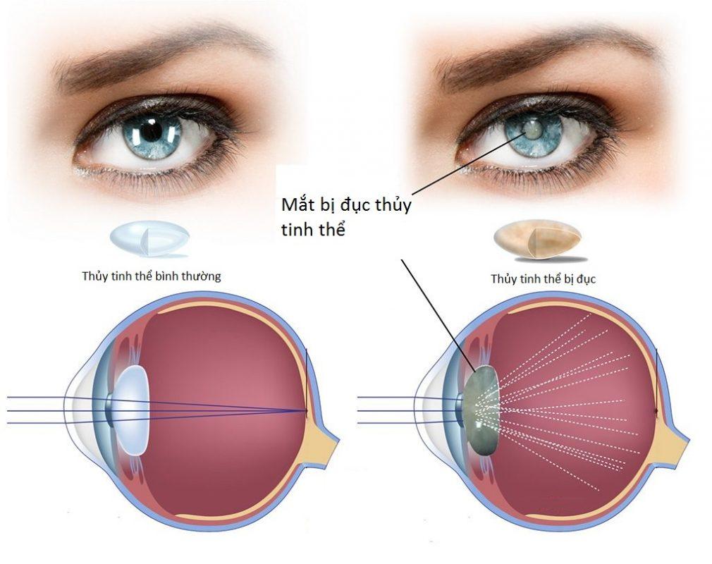 Tác hại của nắng: Gây tổn thương mắt